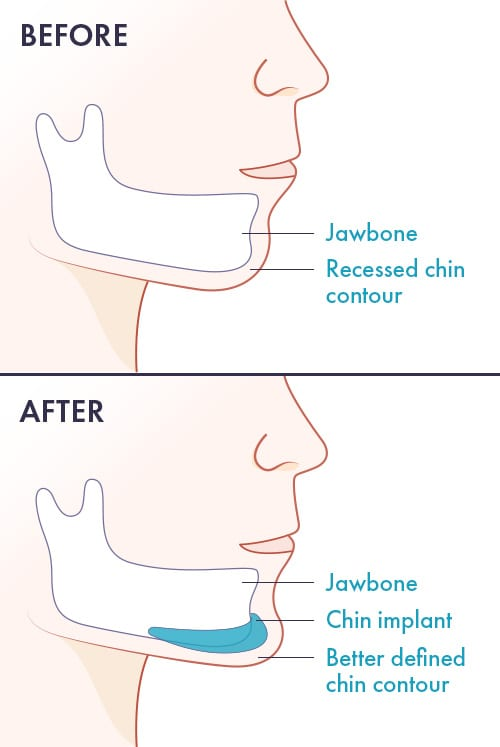 Chin Augmentation Procedures