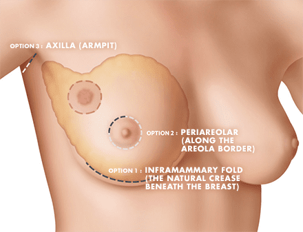 Breast Augmentation Procedure Options